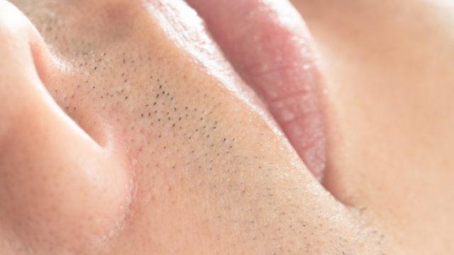 青髭対策にオススメの方法4選
