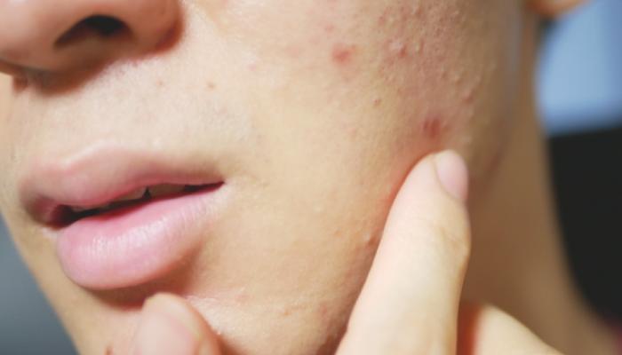 男の肌荒れの原因とは?バリア機能を修復しよう