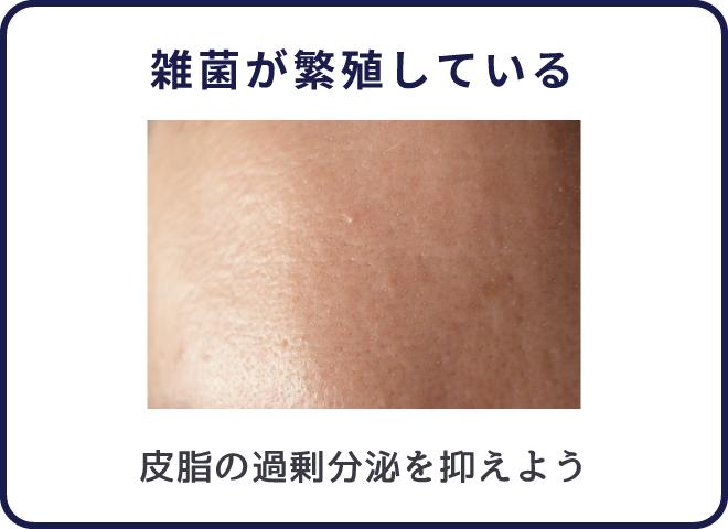 ニキビは肌に雑菌がいる状態