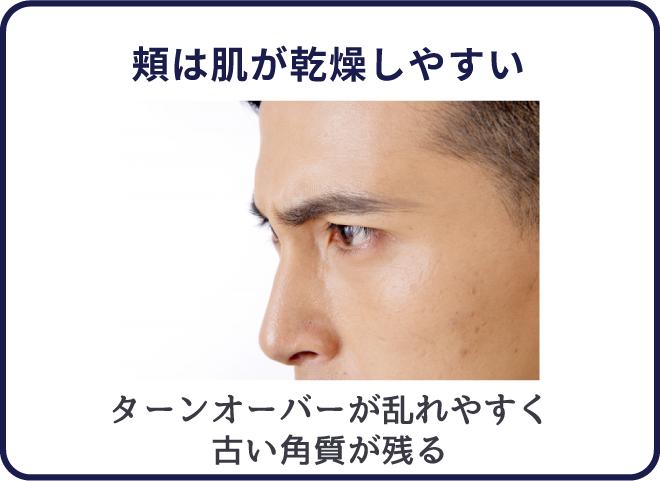 頬は乾燥しやすくターンオーバーが乱れやすい