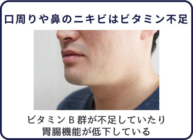口周りや鼻のニキビはビタミン不足によるもの