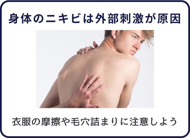 身体のニキビは外部刺激によって汚れが溜まりやすい