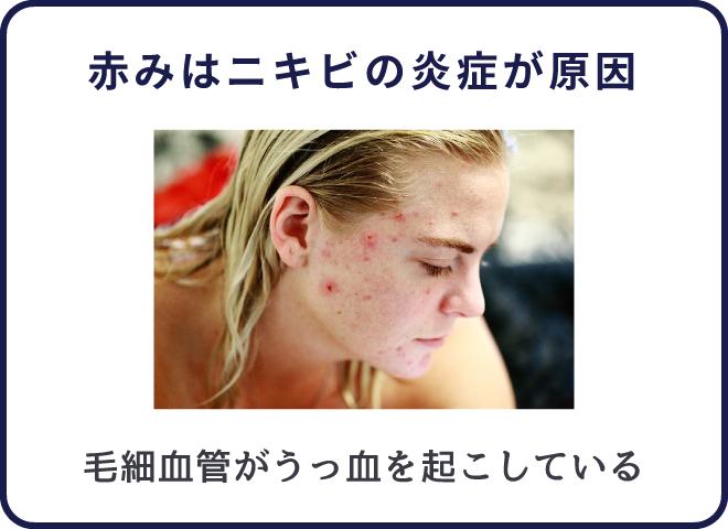 顔の赤みはニキビで皮膚内部がダメージを受けているのが原因