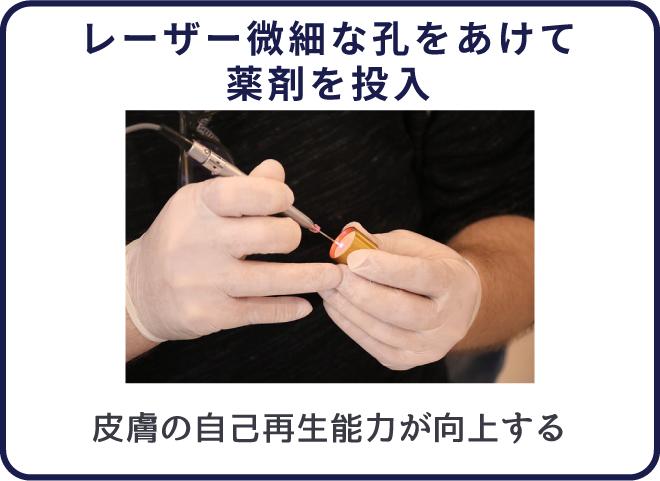 フラクショナルCO2レーザーで新しい皮膚の再生を促す