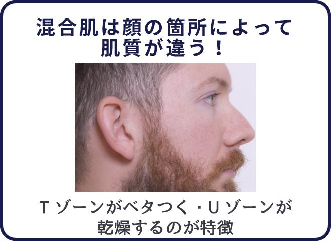 混合肌は顔の部位によって皮脂量が違う